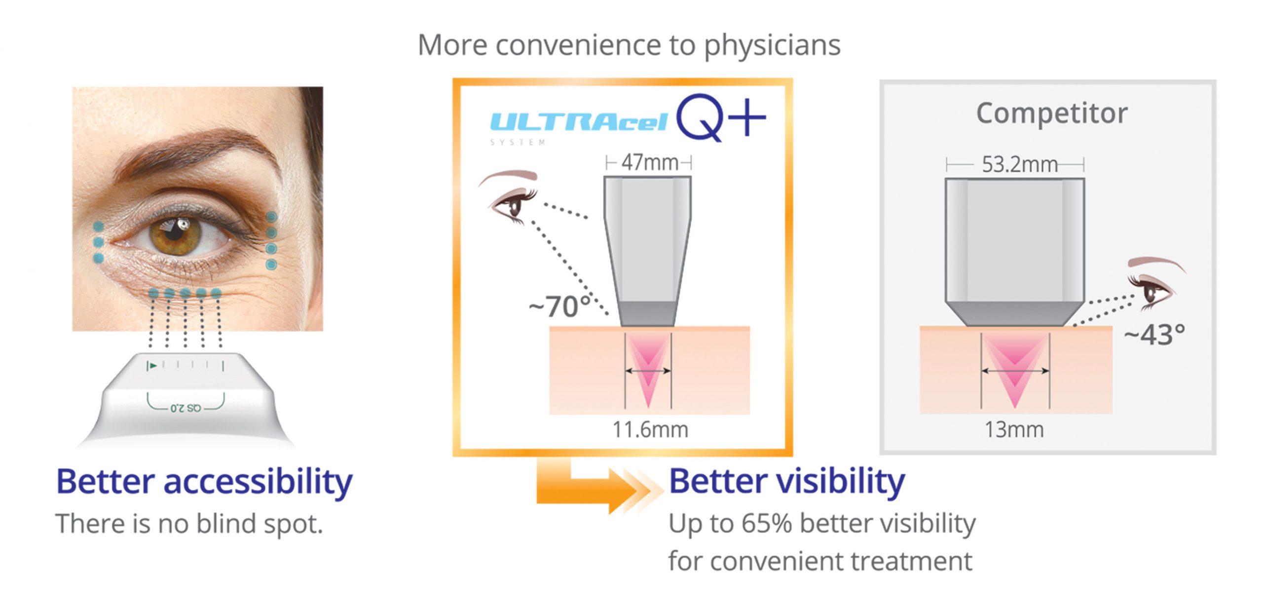 دسترسی بهتر برای درمان چروکهای دور چشم و نواحی منحنی
