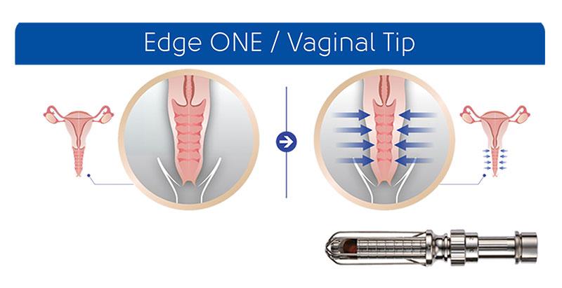 Edge-one vaginal tip