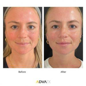 قبل و بعد درمان با ادواتکس