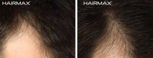 جلوگیری از ریزش و رشد مجدد مو