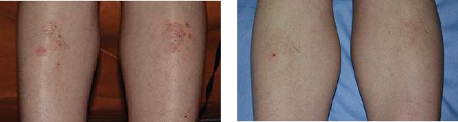 درمان با اگزایمر EXSYS 308